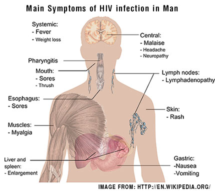 Main-Symptoms-of-HIV-infection-in-Man
